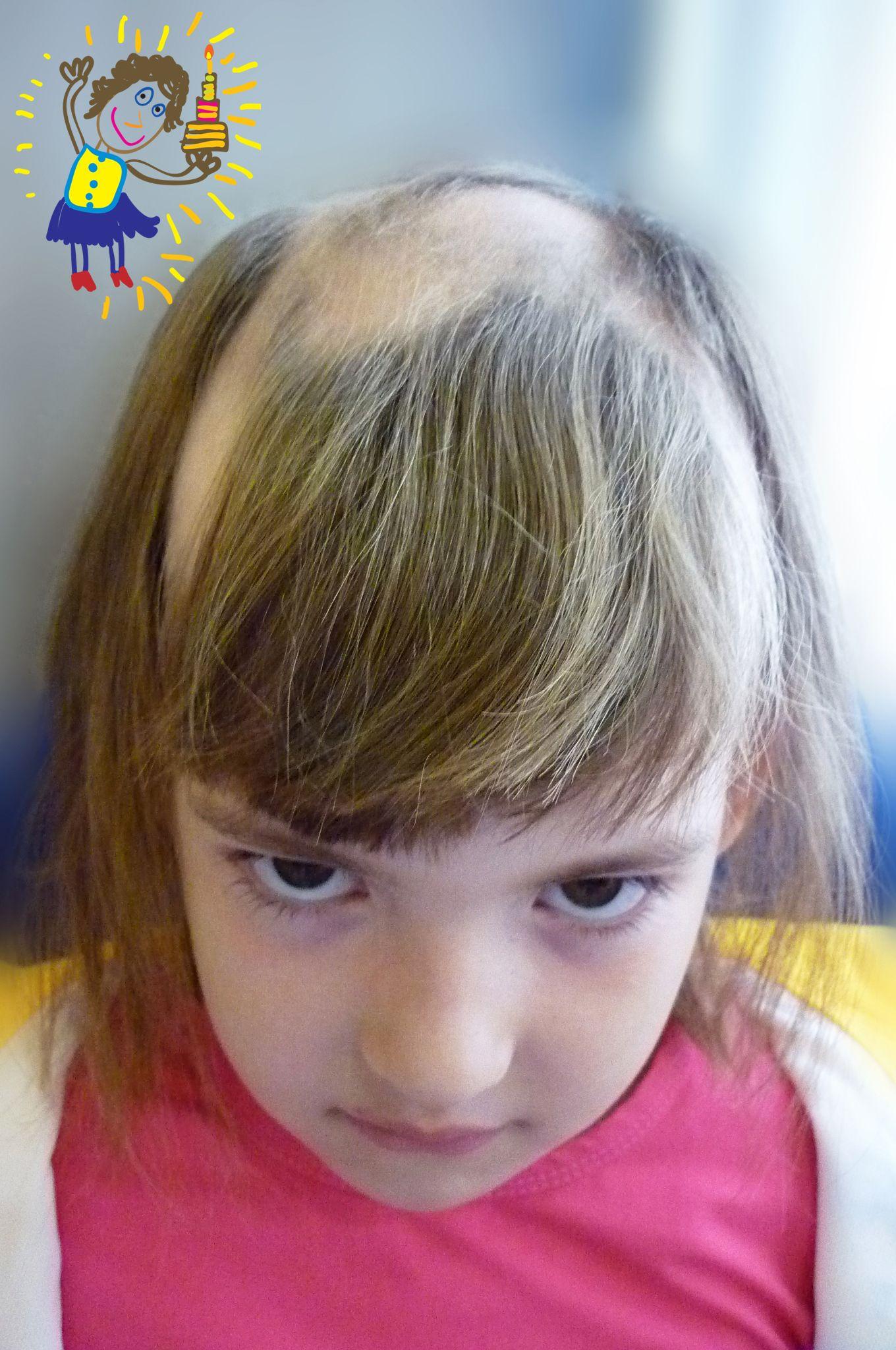 rambut rontok parah