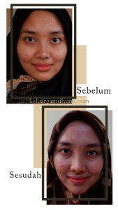 kulit wajah cerah
